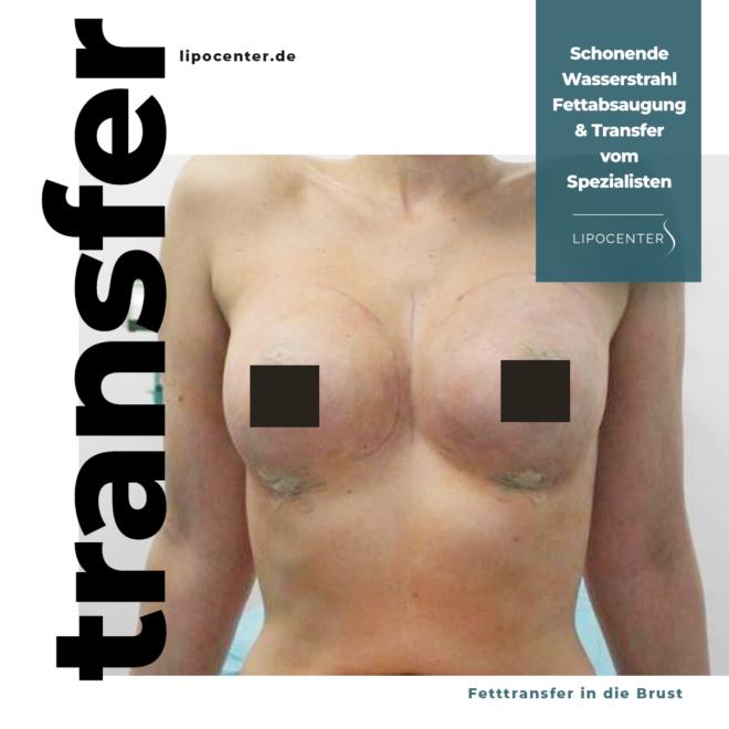 Fetttransfer-in-die-Brust-lipocenter